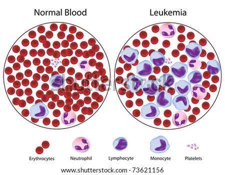 Leukemic versus normal blood - stock photo