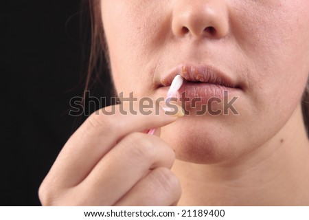 Woman applying cream on lips affected by herpes, shown red 2