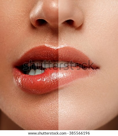 Lips nose face with half tan skin - stock photo