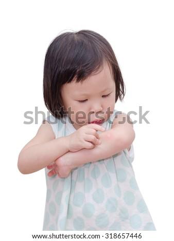 Little Asian girl scratching mosquito bite sore - stock photo
