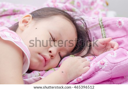 Little asian girl sleeping on bed and bite by mosquitoes ,focus