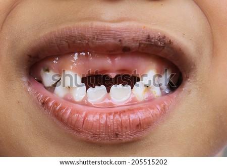 little boy and broken teeth  - stock photo