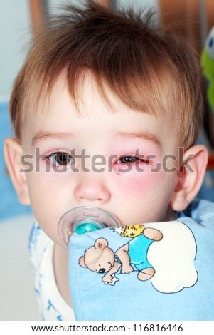 little boy - dangerous stings from wasps near the eye - stock photo