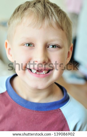 little boy showing that he lost  milk tooth - stock photo