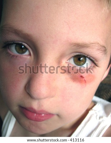 Little boy with a black eye. - stock photo