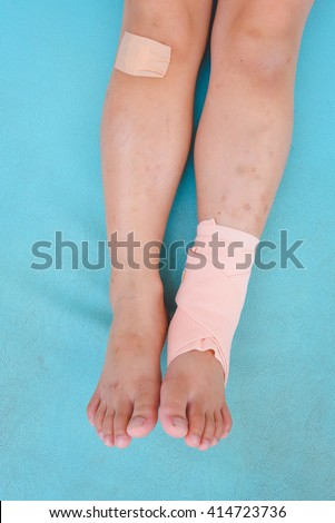 Little girl injured with broken ankle