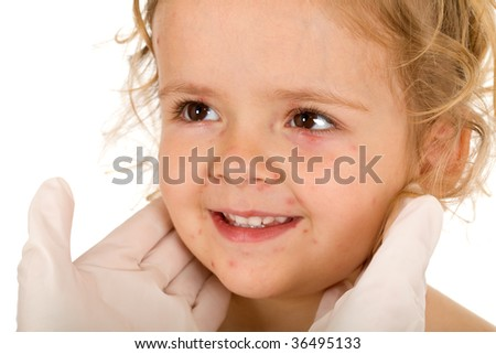 Little girl with small pox at the doctors checkup - isolated, closeup - stock photo