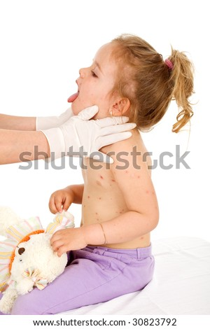Little girl with small pox consulted by a physician - isolated - stock photo