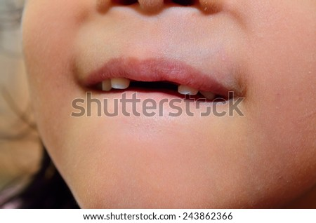 Little girl without two tooth smiles close-up