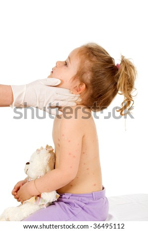 Little kid at the doctors with a severe skin rash or small pox - isolated, side view - stock photo