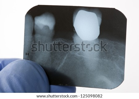 looking a x-ray of tooth - stock photo
