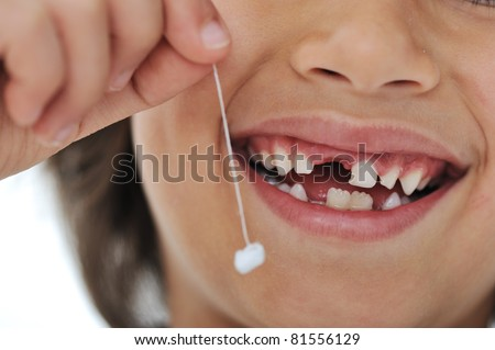 Lost milk-tooth, cute boy with long hair holding his tooth on thread - stock photo