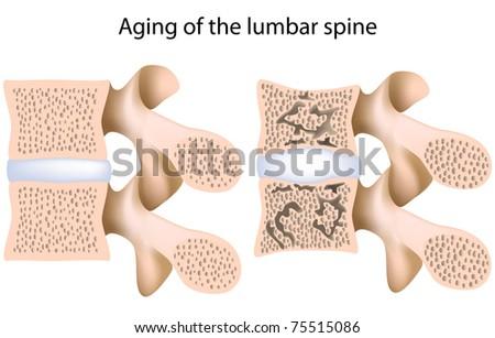 Lumbar spine osteoporosis - stock photo