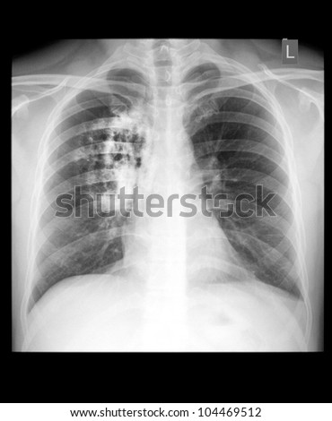 Lung cancer. - stock photo