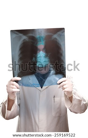 Lungs x-ray - stock photo