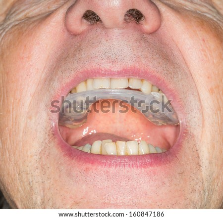 Macro close up of a plastic teethguard to stop wear due to teeth grinding at night. Often caused by tension and worry. Guard in mouth of senior male with crooked teeth - stock photo