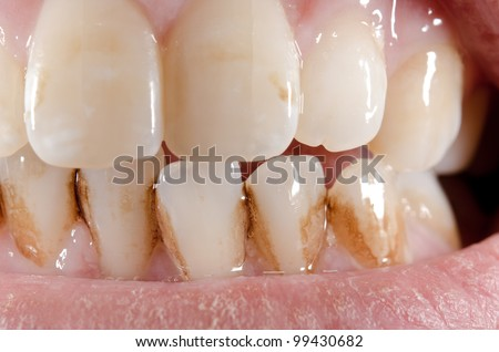 macro, dirty aged front teeth (lower front sharp) - stock photo