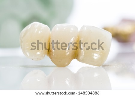 Macro of prosthetic teeth on a white background. - stock photo