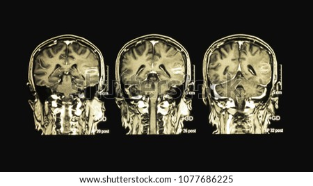 Magnetic Resonance Image MRI Brain Coronal Foto de stock (libre de ...