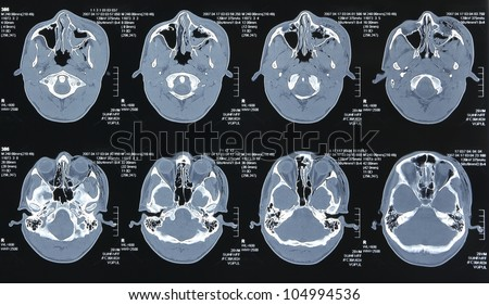 Magnetic resonance images of the human body. Head MRI or CT images - stock photo