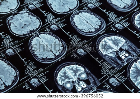Magnetic resonance imaging - stock photo