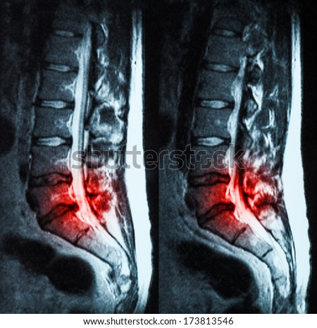 Magnetic resonance imaging (MRI) of lumbo-sacral spines demonstrating herniated disc at L3-L4 and L4-L5 with red color - stock photo
