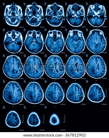 Magnetic resonance imaging (MRI) of the brain, brain tumor, transverse view. A 74 years old woman.