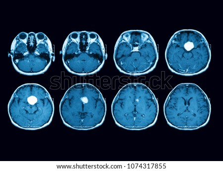 Magnetic Resonance Imaging MRI Scan Brain Foto de stock (libre de ...