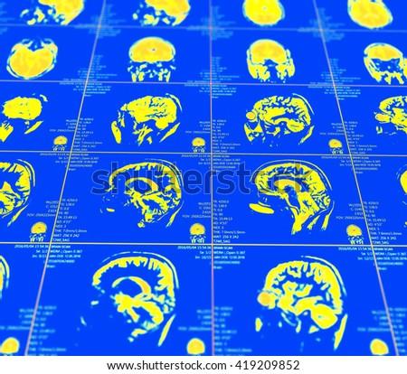 Magnetic resonance imaging of the brain  - stock photo