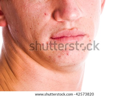 Male ace with acne problem skin isolated on white - stock photo