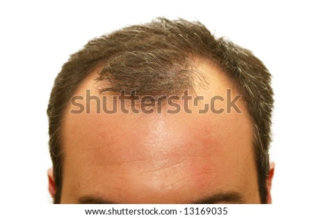 male balding head - stock photo