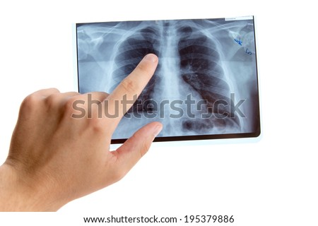 Male hand pointing on lung radiography, isolated on white background  - stock photo