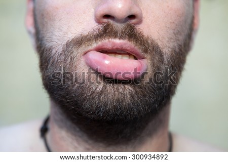 Male lip swollen due to  bee sting - stock photo
