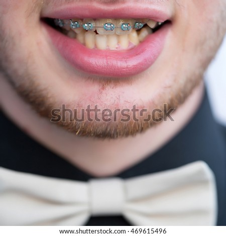 Male mouth with metal medical bracket on crooked teeth of upper jaw on unshaven face of man in black shirt with white tie-bow background closeup