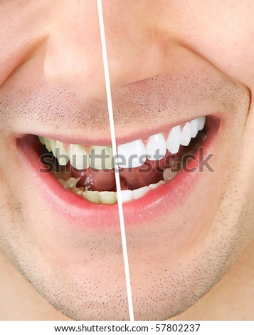 Male teeth before and after whitening - stock photo