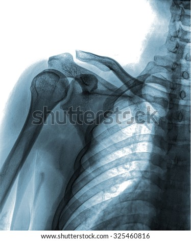 mammography x-ray picture , isolated on white background - stock photo