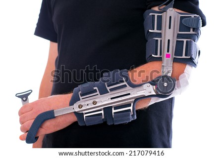 man has broken arm - stock photo