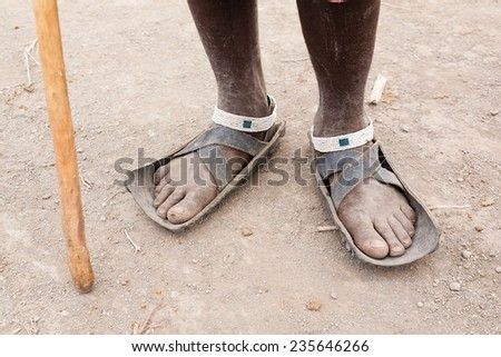 Dirty Feet Stock Images Royalty Free Images Amp Vectors