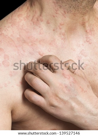Man scratching itchy skin