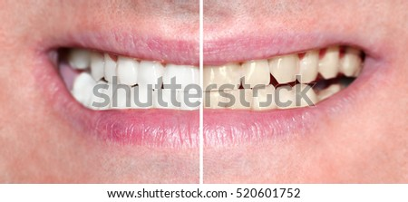 Man smile before and after teeth whitening