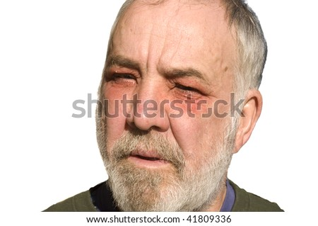 Man suffering from contact with poison oak around his eyes, with swelling of the orbit and general inflammation - stock photo