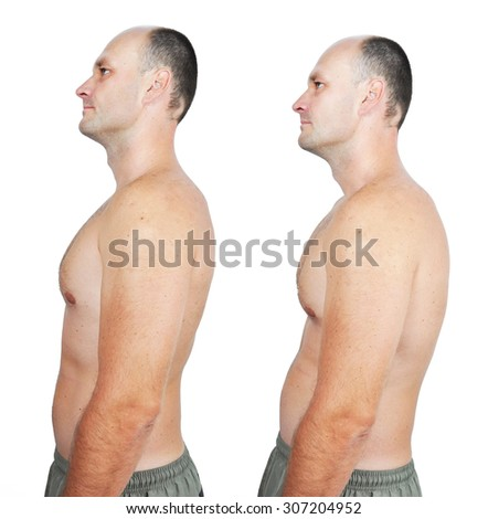 bad Posture Stock Images Royalty Free Images amp Vectors