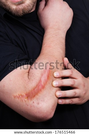 Man with heavy scar on his arm - stock photo