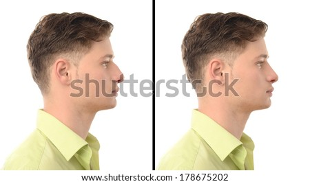 Man with rhinoplasty. Before and after photos of a young man with nose job plastic surgery. - stock photo