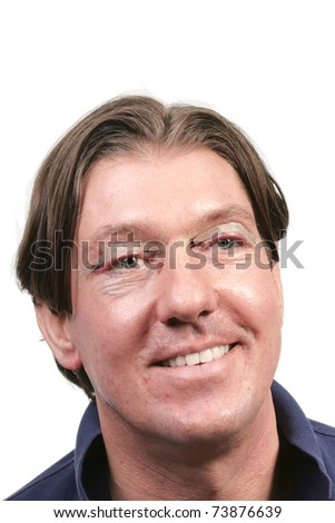 Man with stitches and bruises one day after eyelid surgery - stock photo