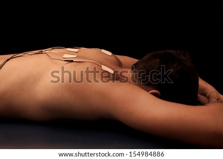 Man with TENS on his back - stock photo