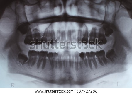 many teeth x ray