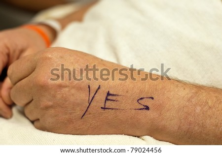 Mature man's hands at rest prior to hand surgery. Left hand marked to indicate correct hand for surgeon to operate on.