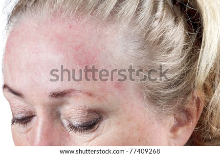 Mature woman's very dry skin - stock photo