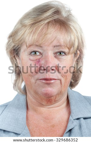 Mature woman with scar and spitting suture one week after Mohs surgery for Basal Cell Carcinoma - stock photo